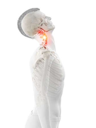 3d rendered medically accurate illustration of a mans painful neck Imagens