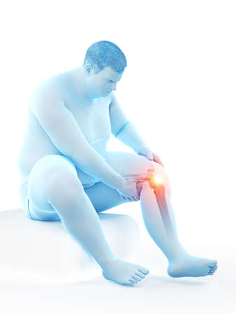 3d rendered medically accurate illustration of an obese mans painful knee