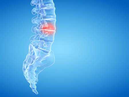 3d rendered medically accurate illustration of painful intervertebral discs Stockfoto