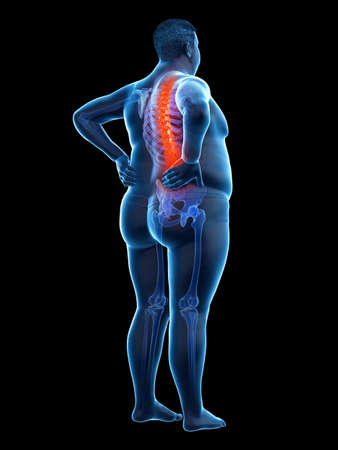 3d rendered medically accurate illustration of an obese mans painful back
