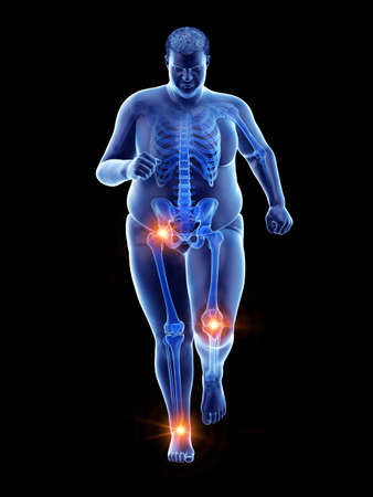 3d rendered medically accurate illustration of an obese runners painful joints Stock Photo