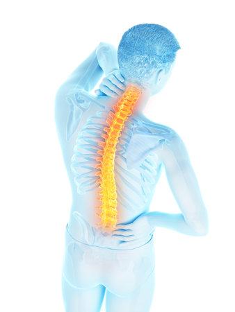 3d rindió la ilustración médicamente exacta de un hombre que tiene dolor de espalda