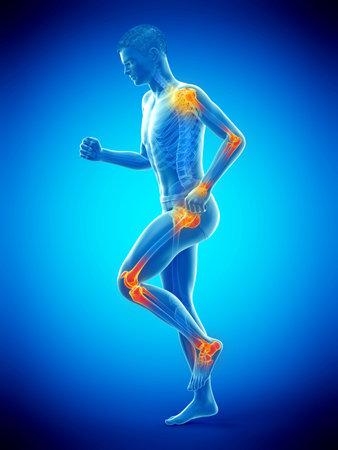 3D-gerenderte medizinisch genaue Abbildung eines gehenden Mannes mit schmerzhaften Gelenken