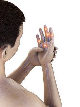 3d rendered medically accurate illustration of painful finger joints