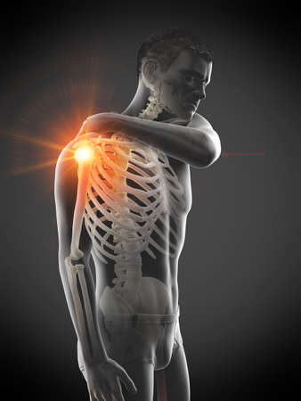 3d rendered medically accurate illustration of a man having a painful shoulder joint Banque d'images - 121703312