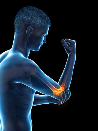 3d rendered medically accurate illustration of a man with painful elbow