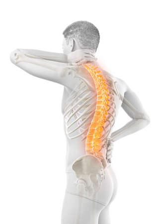 3d rendered medically accurate illustration of a man having a backache