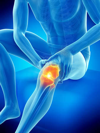 3d rendered medically accurate illustration of a man having a painful knee