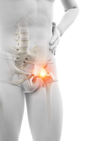 3d rendered medically accurate illustration of a man having a painful hip joint Stock Illustration - 121703925