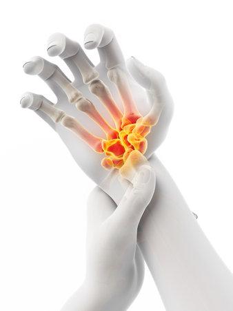 3D-gerenderte medizinisch genaue Abbildung eines Mannes mit einem schmerzhaften Handgelenk Standard-Bild
