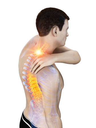 3d rendered medically accurate illustration of a man having a painful neck