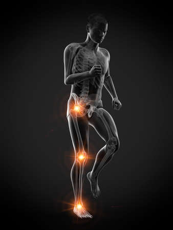 3d rendered medically accurate illustration of a walking man with painful jonts Stock Photo