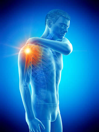3d rendered medically accurate illustration of a man having a painful shoulder joint Banque d'images - 121704497