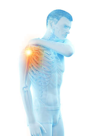 3d rendered medically accurate illustration of a man having a painful shoulder joint Banque d'images - 121704501