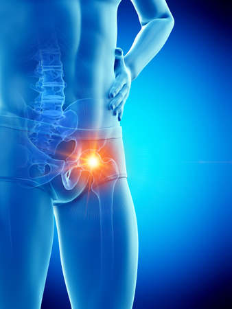 3d rendered medically accurate illustration of a man having a painful hip joint
