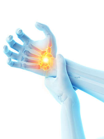 3d rendered medically accurate illustration of a man having a painful wrist Stock Photo