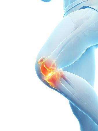 3D rendering illustrazione accurata dal punto di vista medico di un ginocchio doloroso Archivio Fotografico
