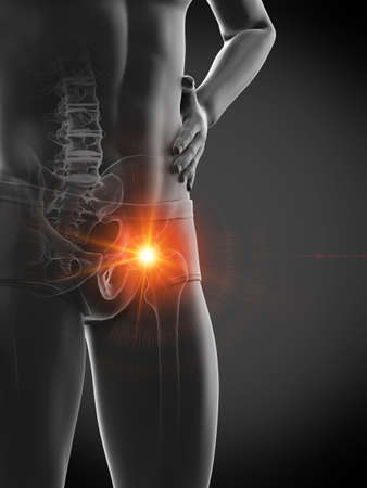 3d rendered medically accurate illustration of a man having a painful hip joint Stock Illustration - 121705098