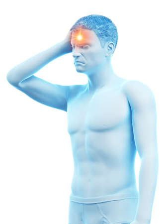 3d rendered medically accurate illustration of a man having headache