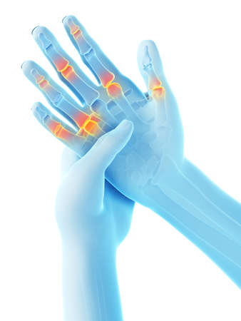 3d rendered medically accurate illustration of painful finger joints Stock Illustration - 122063382