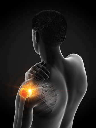 3d rendered medically accurate illustration of a man having a painful shoulder