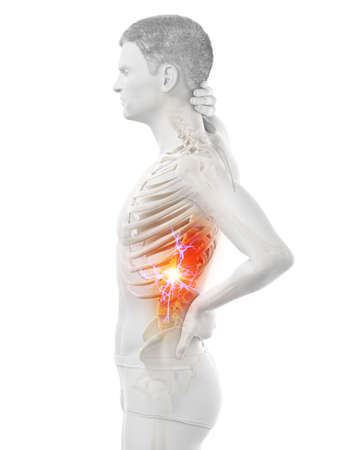 3d rendered medically accurate illustration of a man having acute back pain Reklamní fotografie