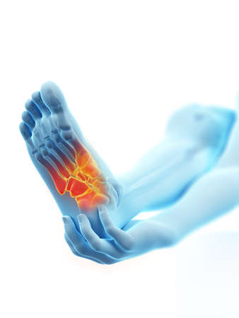 3d rendered medically accurate illustration of a painful ankle Stock Photo