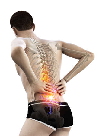 3d rendered medically accurate illustration of a man having acute back pain Stockfoto