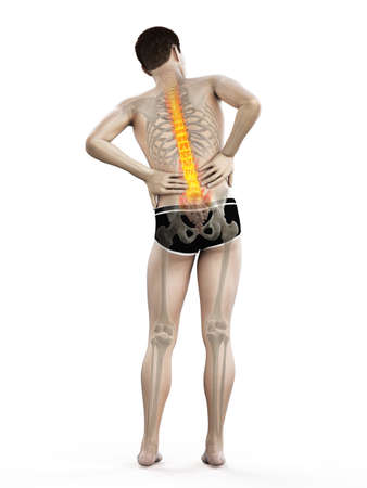 3d rendered medically accurate illustration of a man having acute back pain Standard-Bild