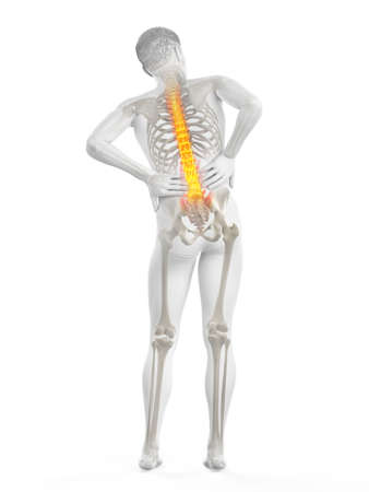 3d rendered medically accurate illustration of a man having acute back pain Imagens