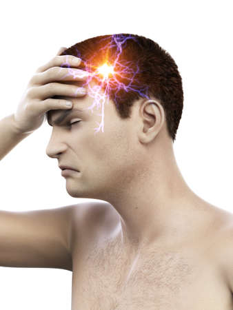 3d rendered medically accurate illustration of a man having a migraine