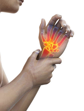 3d rendered medically accurate illustration of painful wrist Stock Photo