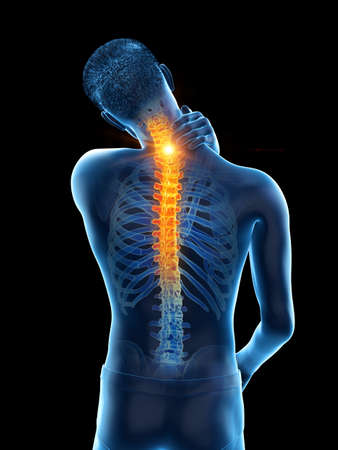 3d rendered medically accurate illustration of a man having a painful upper back 写真素材