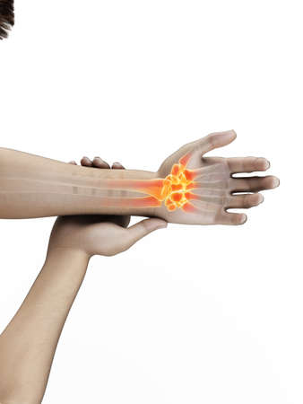 3d rendered medically accurate illustration of a man having a painful wrist Banque d'images