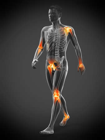 3d rendered medically accurate illustration of painful joints Stock Illustration - 122567232
