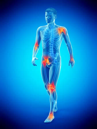 3d rendered medically accurate illustration of a walkers painful joints Stock Illustration - 122567544