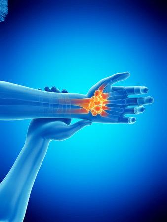 3D-gerenderte medizinisch genaue Abbildung eines Mannes mit einem schmerzhaften Handgelenk