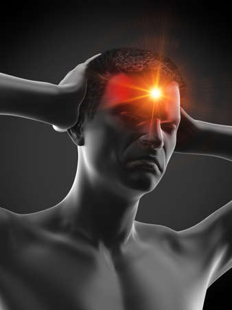 3d rendered medically accurate illustration of a man having a headache Stock Photo