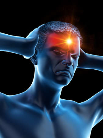 3d rendered medically accurate illustration of a man having a headache 写真素材