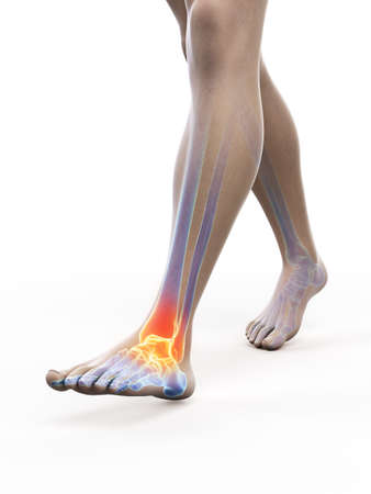 3d rendered medically accurate illustration of a painful ankle Stockfoto