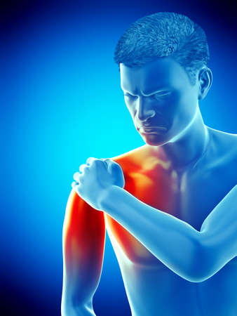 3d rendered medically accurate illustration of a painful elbow