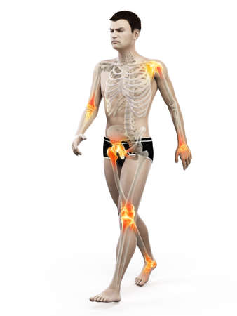3d rendered medically accurate illustration of painful joints
