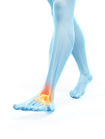3d rendered medically accurate illustration of a painful ankle Banque d'images