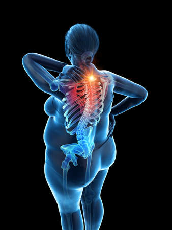 3d rendered medically accurate illustration of an overweight womans painful upper back