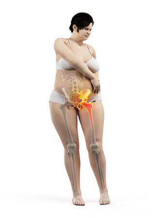 3d rendered medically accurate illustration of an overweight womans painful hip joint Stock Photo