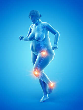 3d rendered medically accurate illustration of an overweight womans painful joints Stock Photo