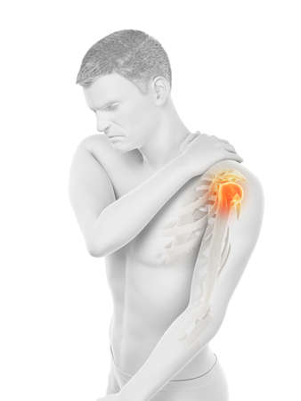 3d rendered medically accurate illustration of a mans painful shoulder 版權商用圖片