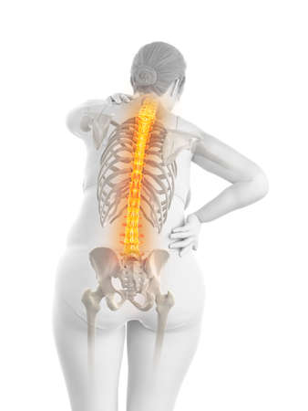 3d rendered medically accurate illustration of an overweight womans painful back Stock Illustration - 123256762