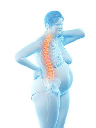 3d rendered medically accurate illustration of an overweight womans painful back Banque d'images