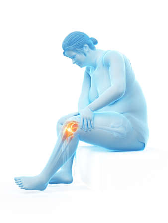 3d rendered medically accurate illustration of an overweight womans painful knee joint